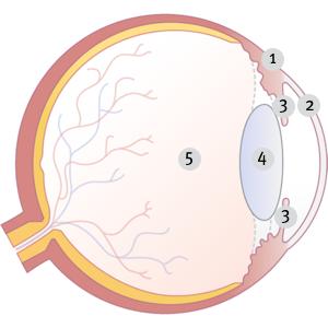 Grafik zeigt Binde- und Lederhaut, Hornhaut, Iris, Linse und Glaskörper