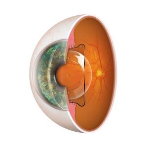 Hinterkammerlinse EVO Visian ICL™