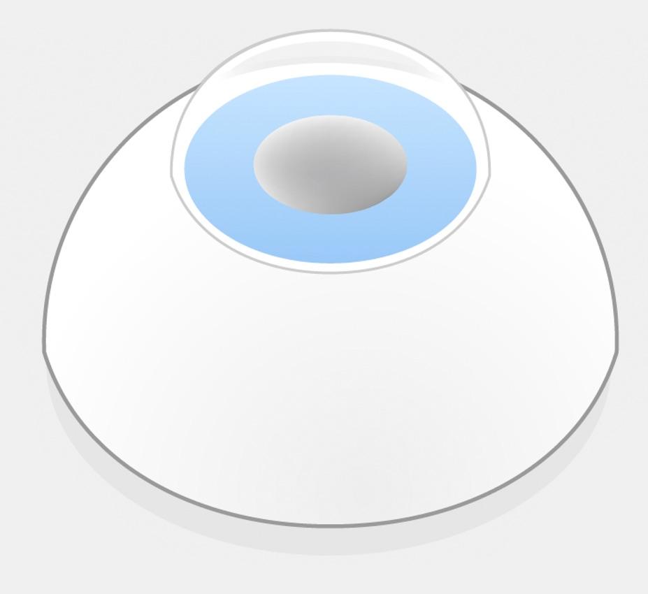 Illustration eines Auges mit einer getrübten Linse.