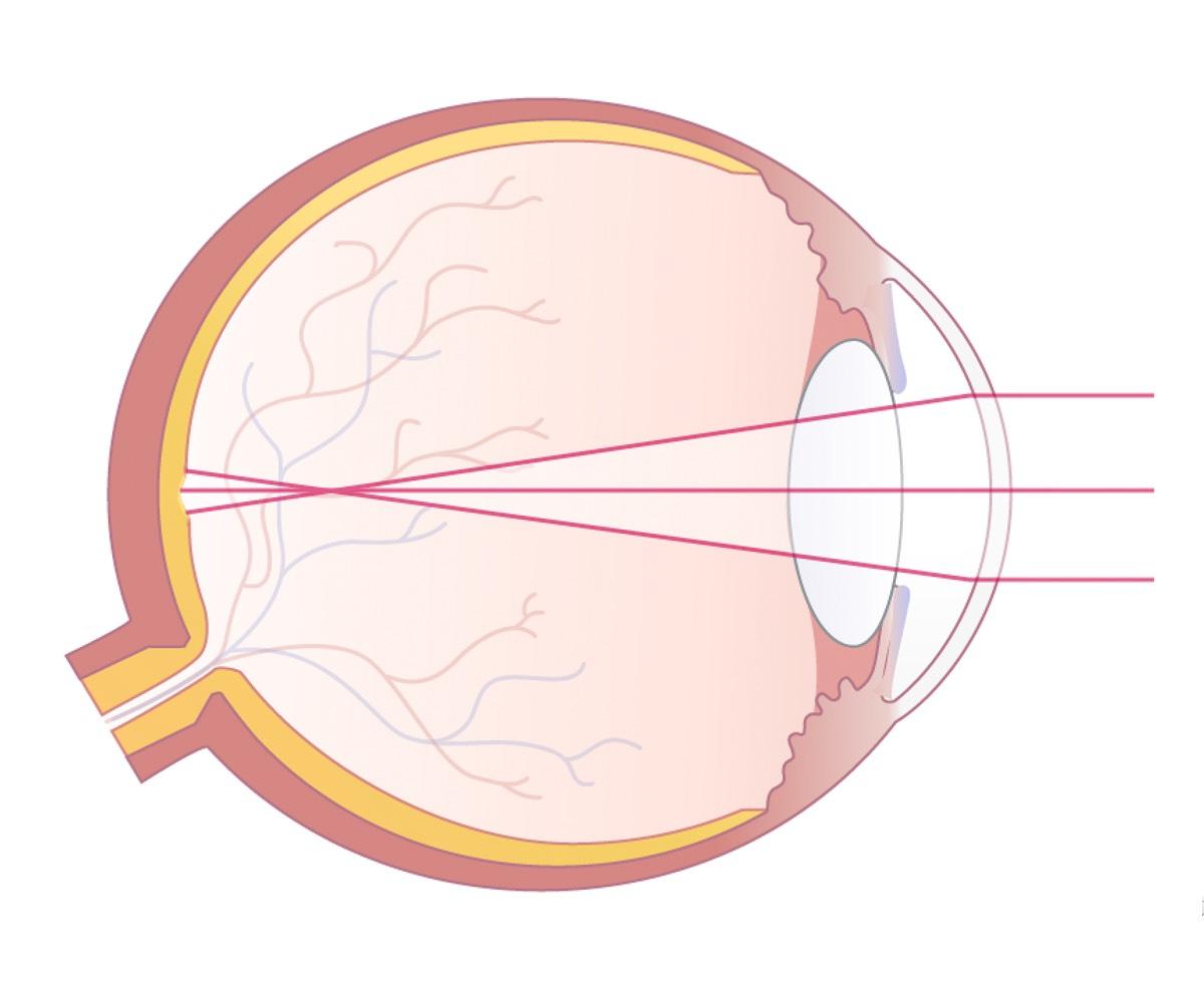 Illustration eines kurzsichtigen Auges mit Darstellung des Strahlengangs des einfallenden Lichtes.