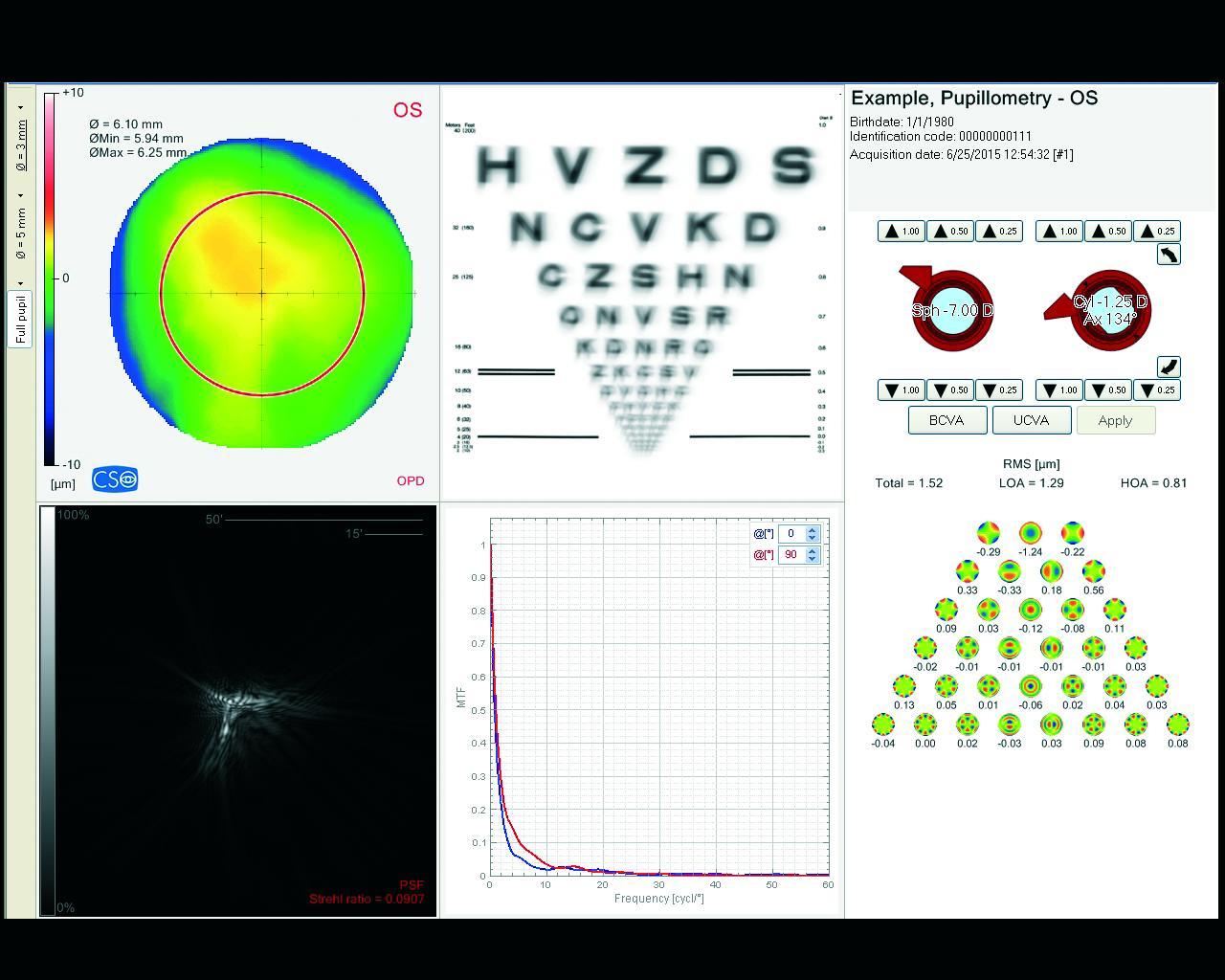 Optische Gegebenheiten des Auges