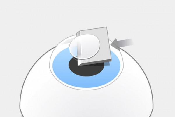 LASIK-Grafik: Der Flapschnitt wird mit einem Mikrokeratom bis auf eine kleine Verbindung abgehobelt und durchtrennt dabei Hornhautnerven. Dadurch entsteht ein trockenes Auge.