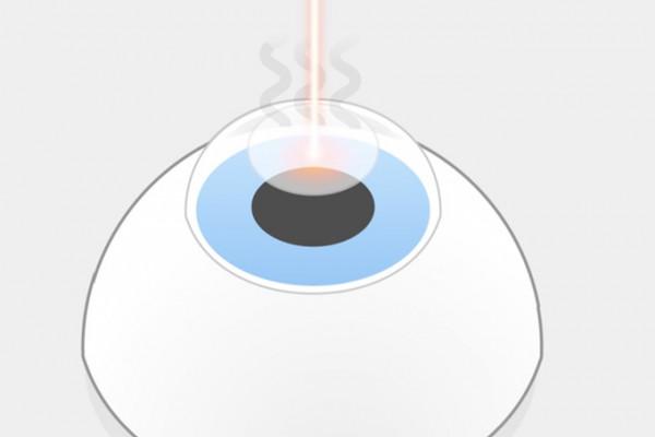 PRK Augenlasern Schritt 2: Anschließend verdampfen Lichtpulse des Excimerlasers einzelne Bereiche der freigelegten Hornhaut, während der Patient einen Lichtpunkt fixiert. Es entstehen unangenehme Gerüche.