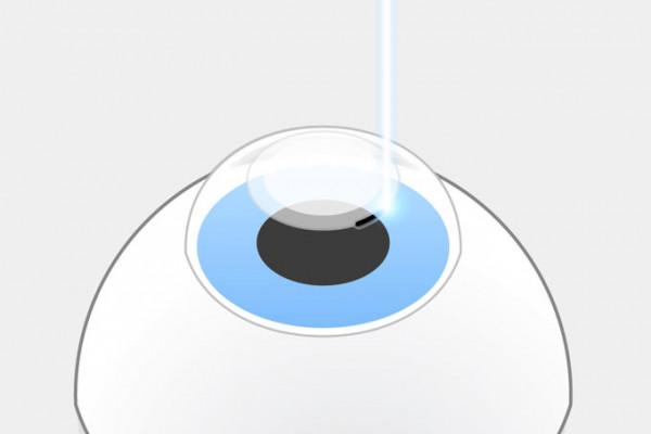ReLEx SMILE Schritt 2 Dann schneidet der Laser eine Öffnung von 2-4 mm in die Hornhautoberfläche.