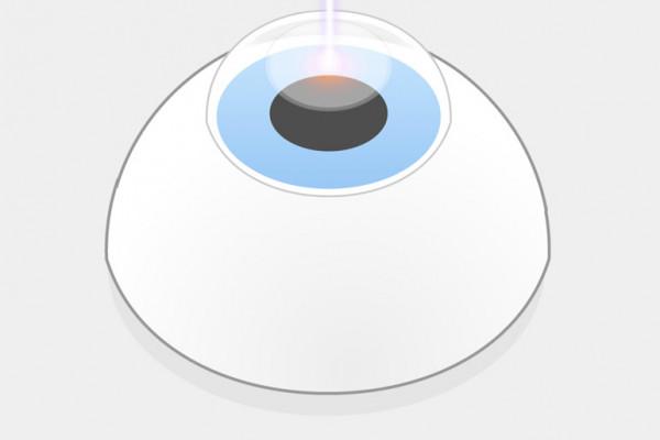 TransPRK Augenlasern Schritt 1 Die Lichtpulse des Excimerlasers verdampfen erst das Hornhautepithel und anschließend einzelne Bereiche der darunter liegenden Hornhaut, während der Patient einen Lichtpunkt fixiert und ein 7D-Eyetracker den Laservorgang überwacht.
