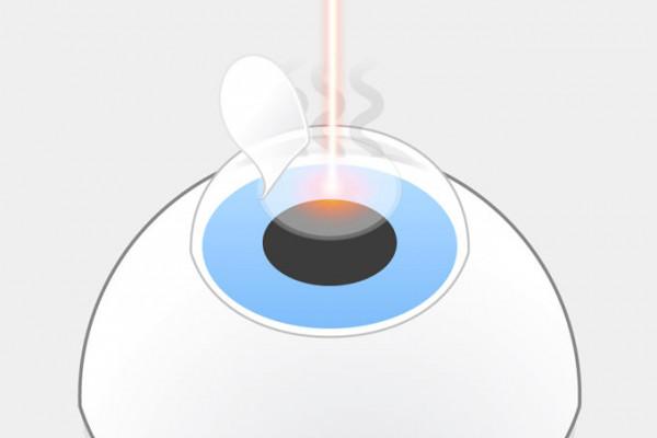 LASIK-Grafik, Schritt 3: Lichtpulse des Excimerlasers verdampfen einzelne Bereiche der freigelegten Hornhaut.