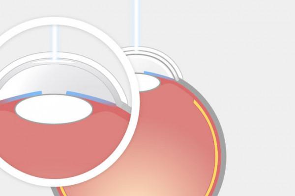 ReLEx SMILE Schritt 2 Dann schneidet der Laser eine Öffnung von 2-4 mm Schnitt in die Hornhautoberfläche.