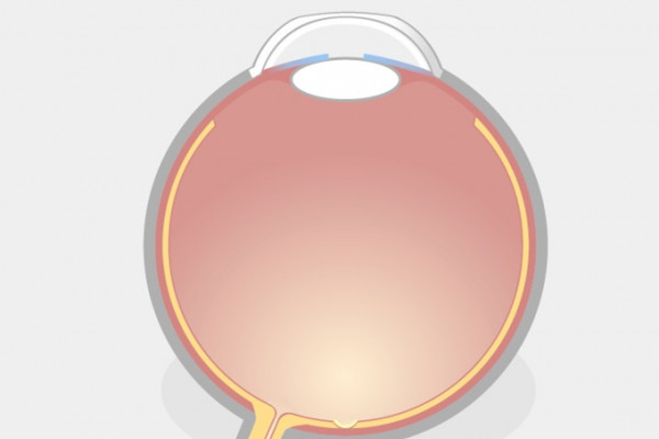TransPRK Augenlasern Schritt 2 Illustration eines Auges mit abgeflachter Hornhaut nach der TransPRK.
