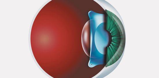Teaserfoto Implantierbare Kontaktlinsen