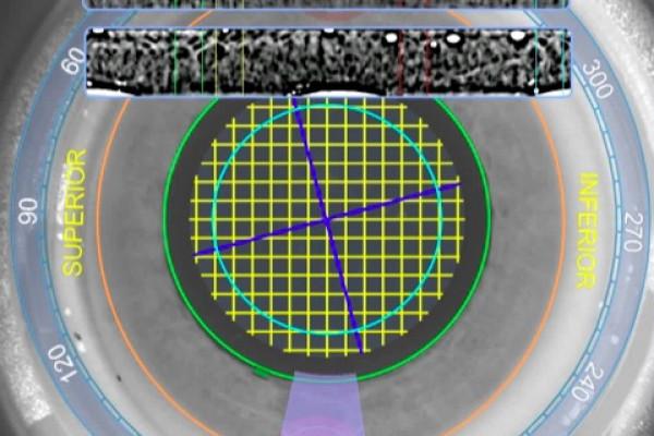 Darstellung der Irisregistrierung mit dem LENSAR-Laser.