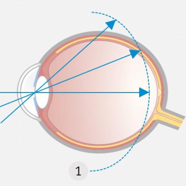 Unkorrigierte Kurzsichtigkeit: Die Schärfenebene (1) liegt vor der Netzhautmitte und in der Peripherie teilweise dahinter.