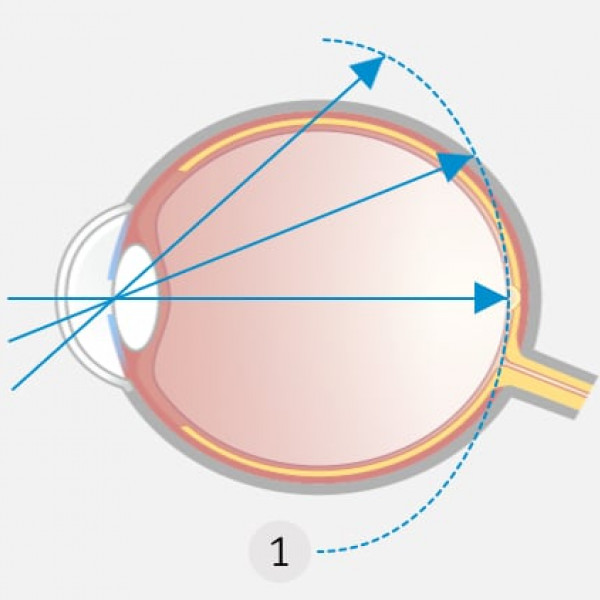 Korrektur der Kurzsichtigkeit mit Einstärken-Brille: Einstärkegläser korrigieren Kurzsichtigkeit so, dass die Schärfenebene (1) genau auf die Netzhautmitte fällt, in der gesamten Peripherie jedoch dahinter (hyperoper Defokus) liegt.