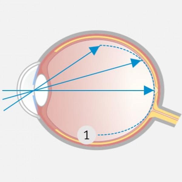 Innovative Korrektur der Kurzsichtigkeit: Die Schärfenebene liegt im Zentrum genau auf der Netzhaut und in der äußeren Peripherie davor (myoper Defokus).