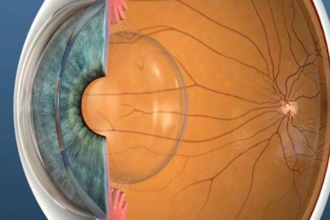 Teaserfoto Presby-Augenlasern