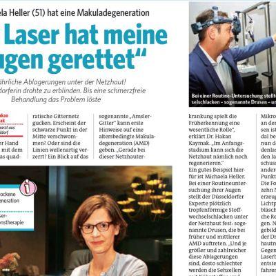 Bild der Frau berichtet über Lasertherapie der AMD