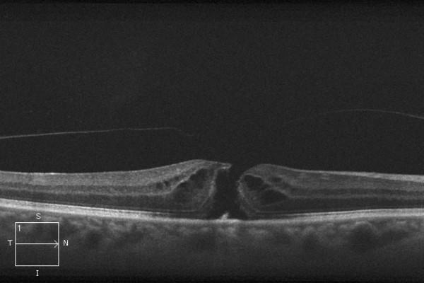 OCT-Aufnahme vor der Operation