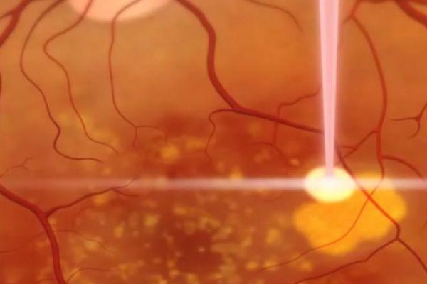 Teaserbild von [Echo] AMD-Behandlungen