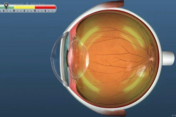 Teaserbild von [Echo] Glaukombeschreibung