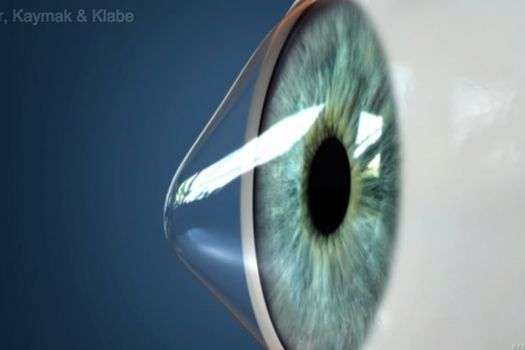 Teaserbild [Echo] Keratoconus Introduction