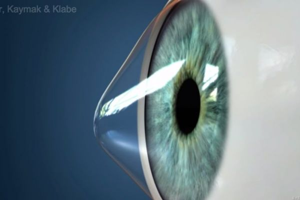 Teaserbild von [Echo] Keratoconus Introduction