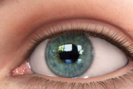Teaserbild [Echo] Kontaktlinsen Überblick