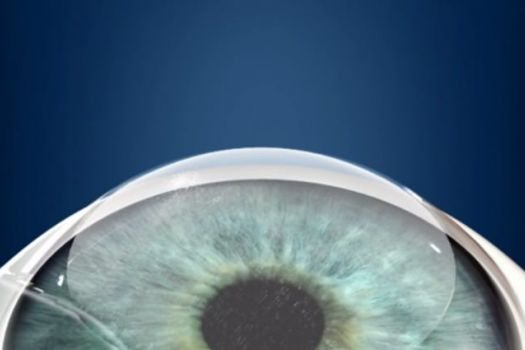 Teaserbild [Echo] LASIK: Laser-OP