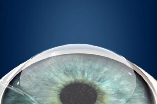 Teaserbild von [Echo] LASIK: Laser-OP