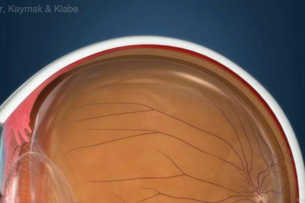 Teaserbild von [Echo] Macular Pucker Auswirkungen und Ursachen