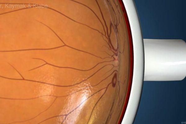 Teaserbild von [Echo] Makula Loch Auswirkungen und Ursachen