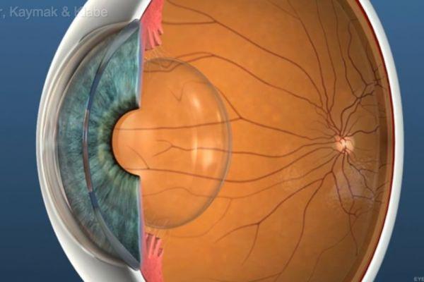 Teaserbild von [Echo] Multifokallinsen
