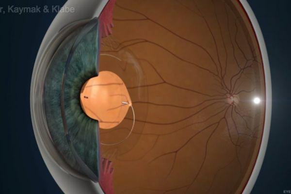 Teaserbild von [Echo] Torische Multifokallinse
