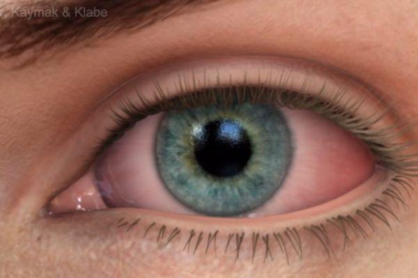 Teaserbild von [Echo] Trockenes Auge