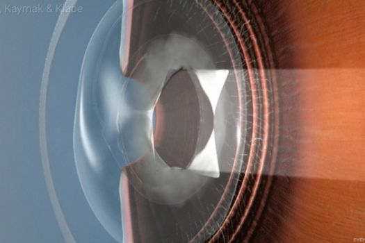 Teaserbild [ECHO] YAG Laser Kapsulotomy