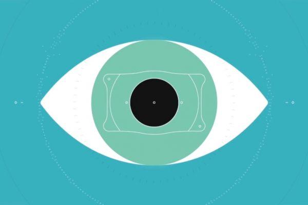 Teaserbild von Implantierbare Kontaktlinse EVO Visian ICL