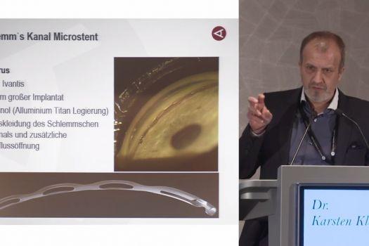 Teaserbild ISA19 Glaukomchirurgie 3.0: Was kommt?