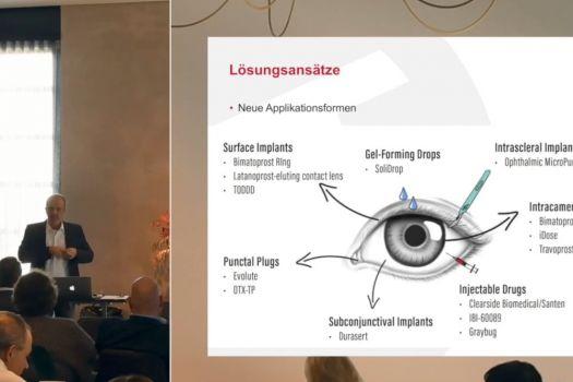 Teaserbild Medikamentöse Glaukomtherapie