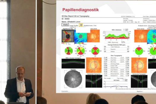Teaserbild OCT-Angiographie in der Glaukomdiagnostik