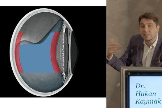 Teaserbild ISA17: Dr. Hakan Kaymak – Behandlung von Glaskörpertrübungen, Fallbeispiele