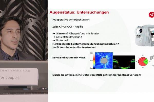 Teaserbild von ISA17: James Leppert – Von der Untersuchung bis zur Auswahl der MIOL