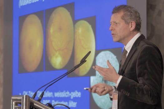 Teaserbild ISA17: Prof. Dr. Hans Hoerauf: Fallbeispiele – Glaskörpertrübungen
