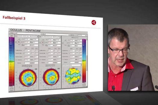 Teaserbild [Vimeo] Von der Diagnose zur Therapie: Gelebte Zusammenarbeit zwischen Praxis und Klinik