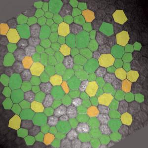 Färbung einzelner Zellformen